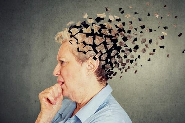 Alzheimer'ı 20 Yıl Önce Öngören Test Geliştirildi - News Kıbrıs - News  Kıbrıs